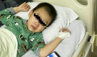Bé trai 3 tuổi nhập viện cấp cứu do uống nhầm dầu hỏa