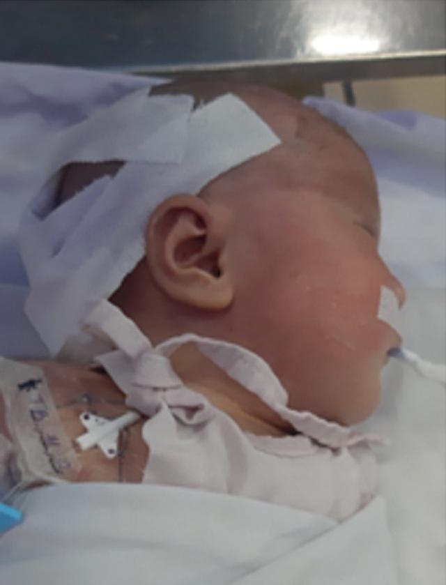 Bé trai bị dị tật ngay khi mới chào đời, bác sĩ chỉ cách giúp mẹ bầu phòng tránh