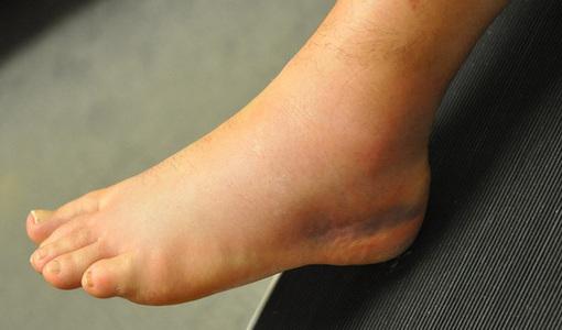 Thấy 3 dấu hiệu này ở chân, bạn cần đi khám ung thư gan, xương ngay lập tức