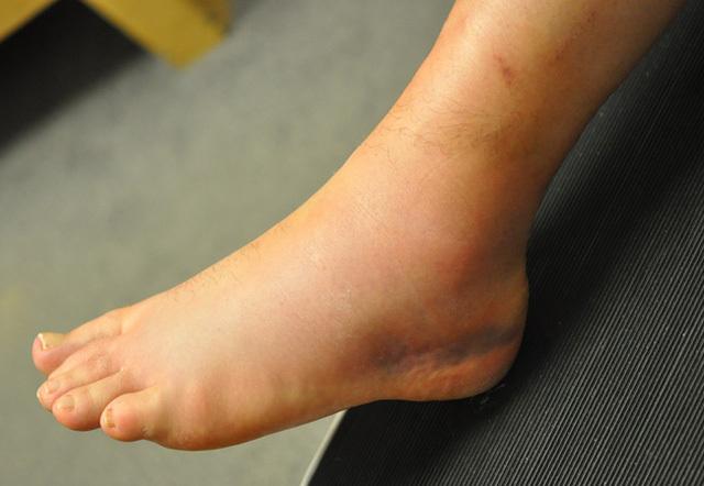 Bỗng dưng thấy 3 dấu hiệu này ở chân, bạn cần đi khám ung thư gan, xương ngay lập tức