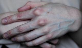 Gân xanh nổi ở tay chân báo hiệu điều gì về sức khỏe?