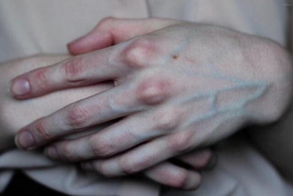 Gân xanh nổi ở tay chân báo hiệu điều gì về sức khỏe