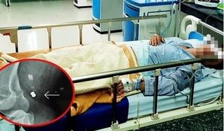Quảng Nam: Đi làm về, người đàn ông bị 'đạn lạc' bắn trúng đùi gây đứt động và tĩnh mạch