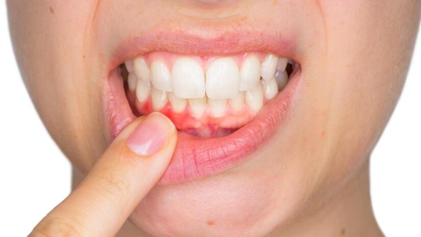 viêm lợi chân răng
