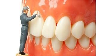 Phòng ngừa cao răng đơn giản hơn bạn nghĩ!