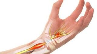 Các nguyên nhân thường gặp khiến bạn bị đau khớp cổ tay