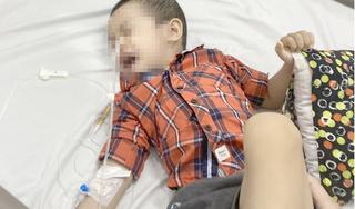 Nuốt pin đồng xu, bé trai 4 tuổi bị bỏng thực quản