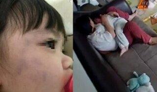 Thấy mặt con bầm tím, check camera bố mẹ sốc với hành động của giúp việc