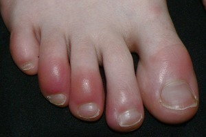 Vì sao ngón chân, tay sưng ngứa vào mùa đông?