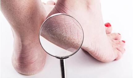 Gót chân thường xuyên bị khô và nứt nẻ, coi chừng sức khỏe đang 'kêu cứu'