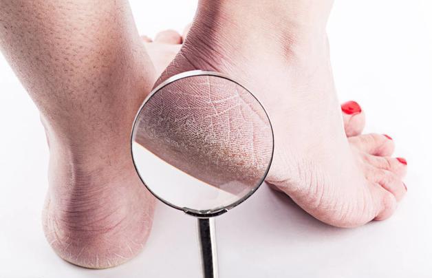 Gót chân thường xuyên bị khô và nứt nẻ, coi chừng sức khỏe đang kêu cứ