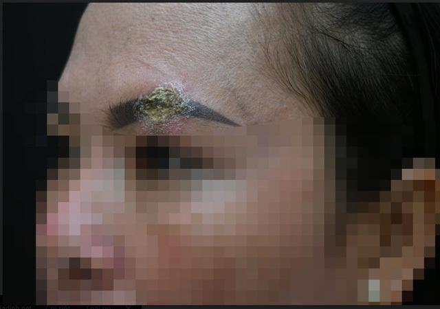 Môi của cô gái trẻ sưng phù, biến dạng sau khi làm đẹp tại thẩm mỹ viện