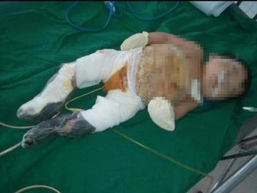 Tập lật người, bé 6 tháng tuổi bỏng nặng do ngã vào chậu than sưởi ấm