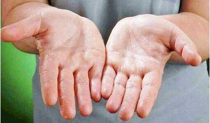 Bệnh đổ mồ hôi chân, tay trong những ngày lạnh: Cách điều trị hiệu quả tại nhà