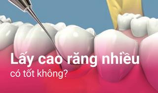 Có nên lấy cao răng nhiều và cách chăm sóc răng miệng