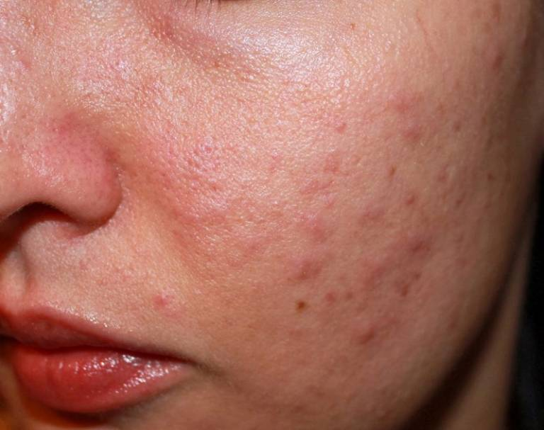 Những căn bệnh thường gặp sau Tết và cách phòng tránh