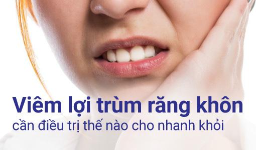 viêm lợi trùm răng khôn