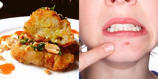 Những người không nên ăn bánh chưng ngày Tết kẻo rước họa vào thân