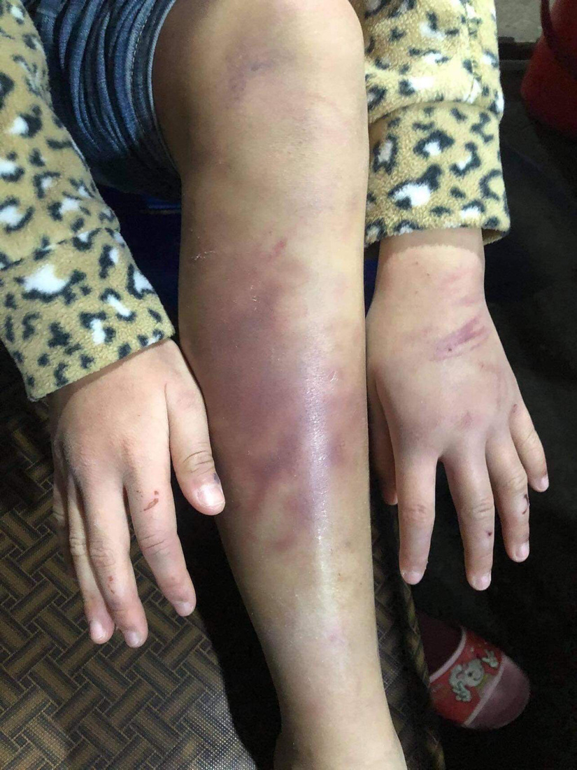 Bé gái nghi bị mẹ đẻ bạo hành dã man, người tình của mẹ xâm hại nhiều lần