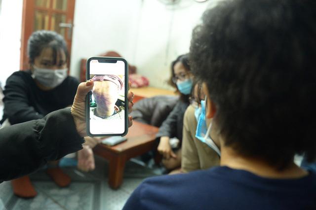 Hà Nội yêu cầu khẩn trương làm rõ vụ bé gái 12 tuổi ở Hà Đông nghi bị mẹ đẻ bạo hành dã man
