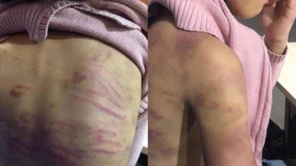 Phê chuẩn quyết định khởi tố bị can vụ hiếp dâm con riêng 'vợ hờ'