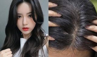 Vì sao ngày càng nhiều người trẻ bị bạc tóc?