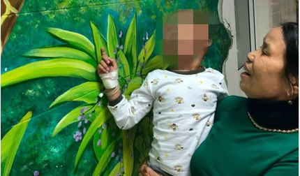 Cứu sống bé hơn 4 tuổi ở Thanh Hóa bị chó cắn vào đầu