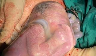 Hiếm gặp: 2 bé song sinh chào đời, 1 bé còn nguyên trong bọc ối