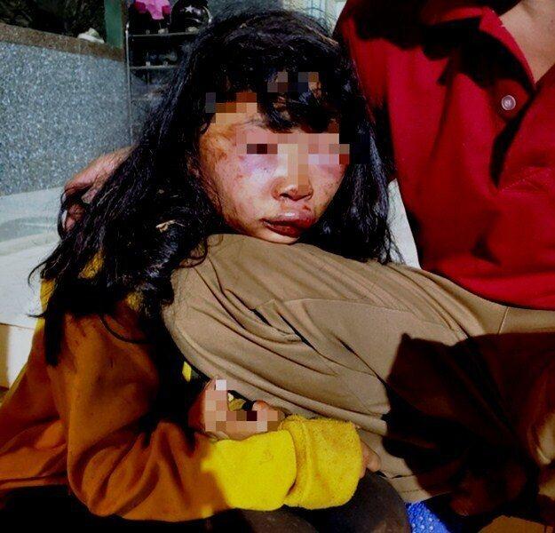 Nữ sinh lớp 6 bị kẻ lạ mặt đánh ngất xỉu, mặt mũi biến dạng trên đường đi học về