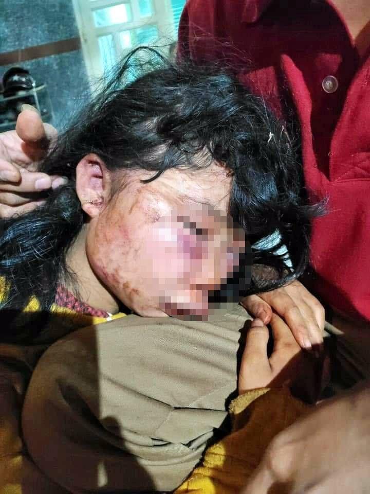 Nữ sinh lớp 6 bị kẻ lạ mặt đánh dã man trên đường đi học về kể gì