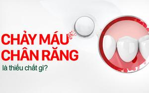 Chảy máu chân răng là thiếu chất gì, điều trị thế nào nhanh khỏi?
