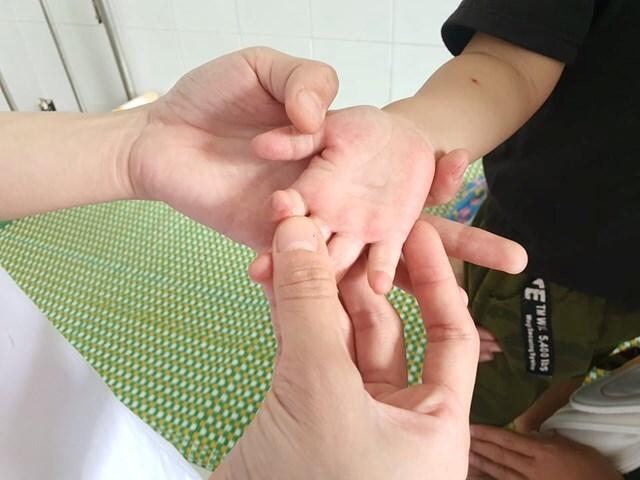 Quảng Nam, Quảng Ngãi khẩn cấp dập bệnh tay chân miệng
