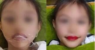 Từ vụ bé 5 tuổi xăm môi, chuyên gia cảnh báo những hệ lụy khó lường tuyệt đối không nên chủ quan!