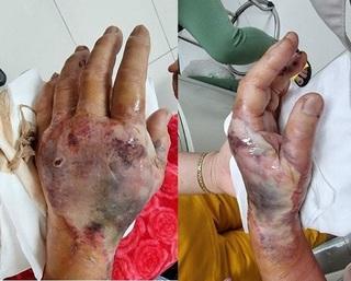 Nhiễm trùng, hoại tử bàn tay vì tự điều trị đái tháo đường tại nhà