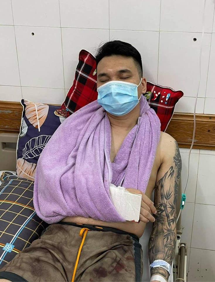 Ca sĩ Khắc Việt bị gãy tay, phải làm phẫu thuật ngay trong ngày hôm nay