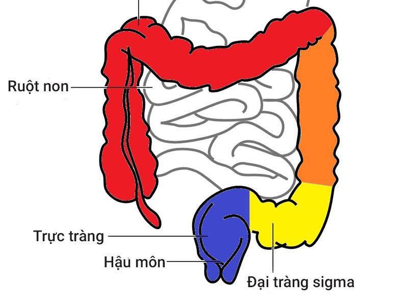 viêm đại tràng sigma