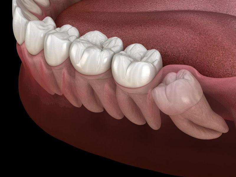 Đau nhức răng khôn