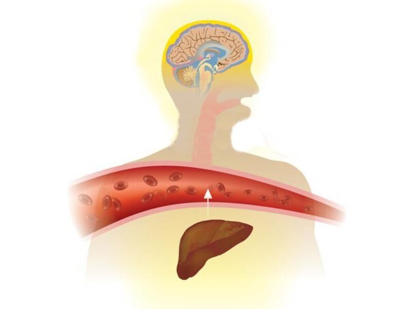 Dấu hiệu của bệnh gan