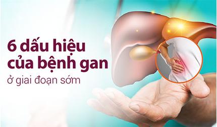 6 dấu hiệu của bệnh gan ở giai đoạn sớm giúp can thiệp kịp thời