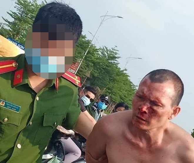 Sức khỏe của tài xế taxi bị đâm trọng thương vẫn cố hạ gục tên cướp