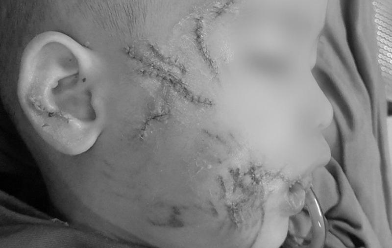 Sang nhà hàng xóm chơi, bé trai 3 tuổi bị chó tấn công gây thương tích nặng