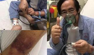 Nghệ sĩ Giang 'còi' chuyển nặng, chân tay sưng to bầm tím vì lấy ven