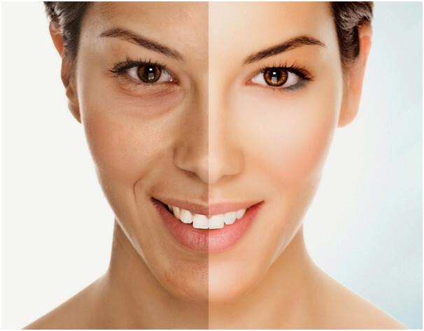 Trẻ hóa da mặt bằng laser tại thẩm mỹ The Face