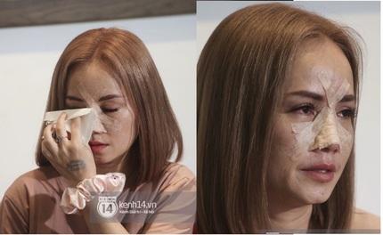 Diễn viên Hoàng Yến xuất hiện với mũi băng kín sau khi bị chồng cũ đánh