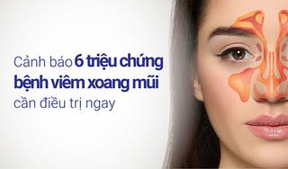 Cảnh báo 6 triệu chứng bệnh viêm xoang mũi cần điều trị ngay