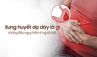 Xung huyết dạ dày là gì, những điều nguy hiểm ít người biết