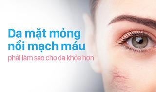 Da mặt mỏng nổi mạch máu phải làm sao cho da khỏe hơn?