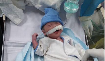 Bé trai chào đời ở phòng hồi sức cấp cứu Covid-19