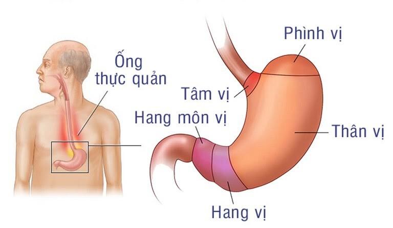 viêm hang vị dạ dày
