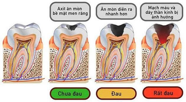 sâu răng ở người lớn